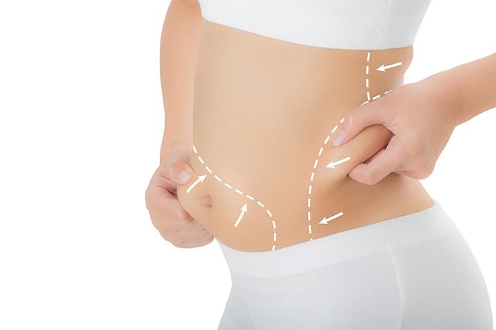 Effektiv fettfjerning uten kirurgi med lipolaser hos Alexandra Maria Studio