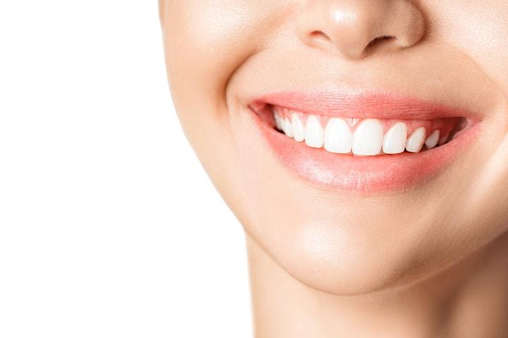 Tannbleking hos Strømmen Tannklinikk Pluss
