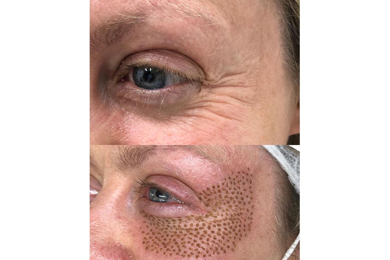 Plasma pen för uppstramning av hud