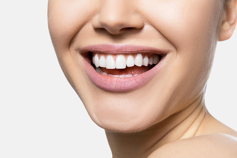 Tandblekningspaket inkl. undersökning (1 av 1)