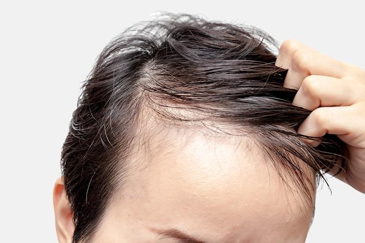Microneedling för förbättrad hårväxt