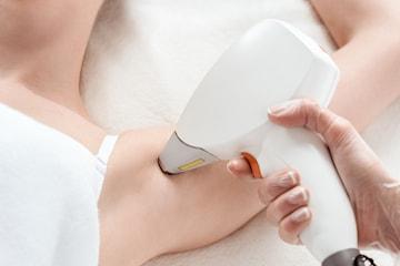 Hårborttagning med diodlaser