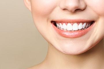 Få hvitere tenner med tannbleking hos Svelvik Hudpleie