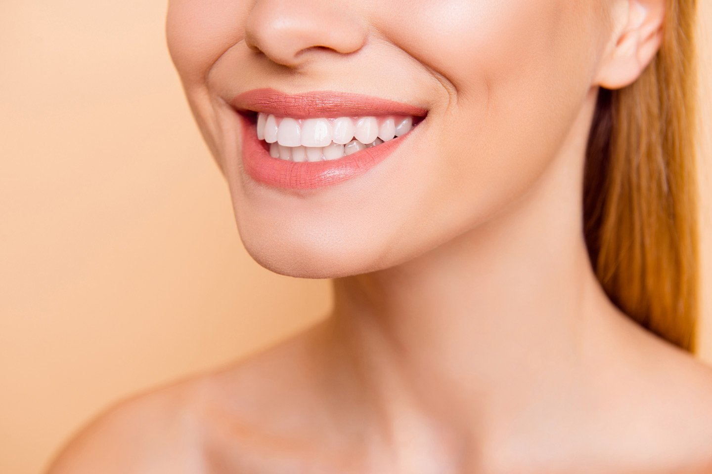 Kosmetisk tannbleking med Beauty Smile (1 av 1)