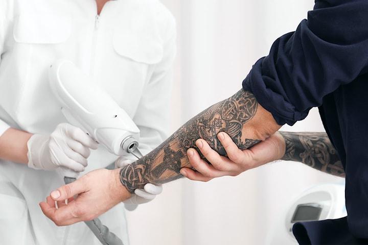 Tatueringsborttagning hos Lala Beauty
