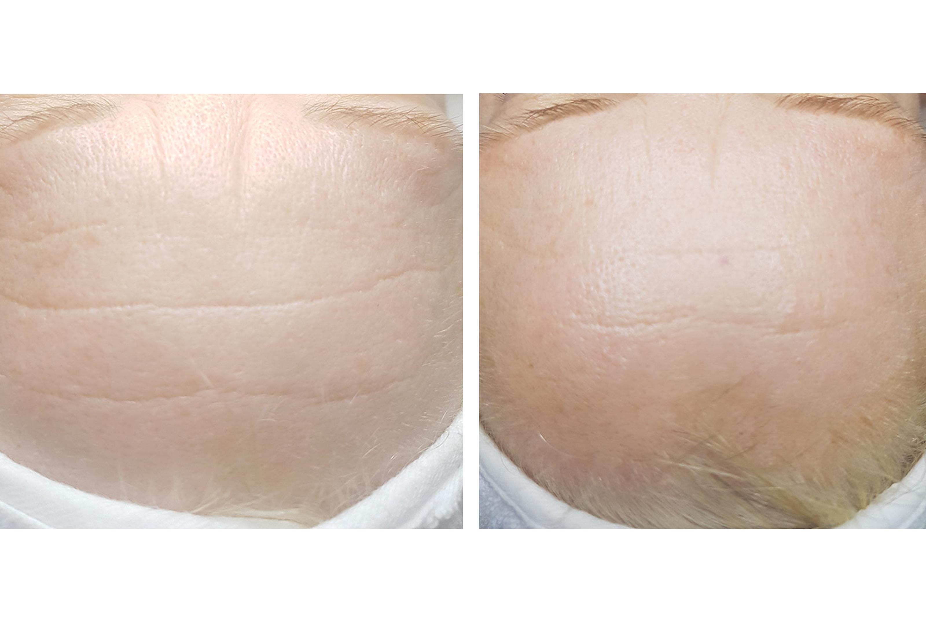 Icke kirurgiskt ansiktslyft med radiofrekvens och hudslipning