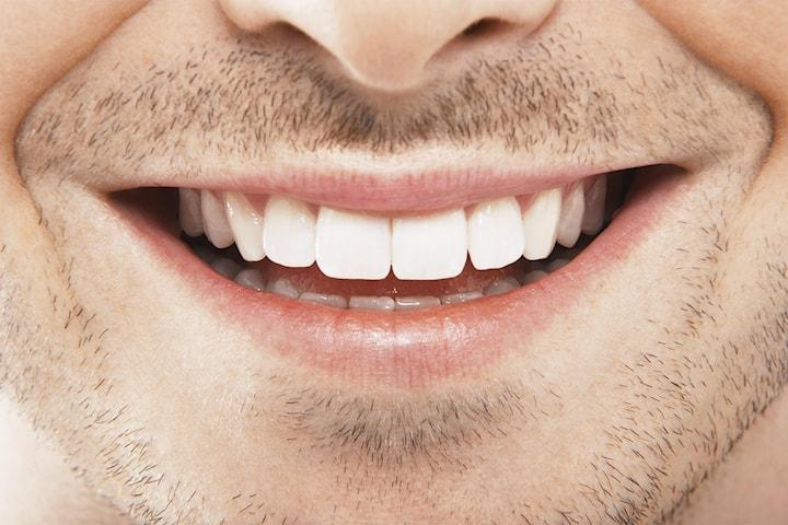 Tandblekningspaket inkl. undersökning